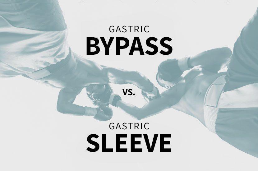 Bypass Gástrico X Sleeve: qual cirurgia é melhor para você?